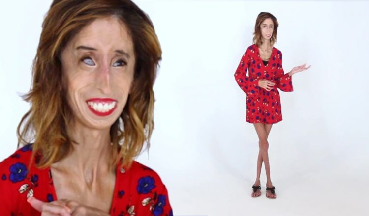 Lizzie Velasquez ugliest woman in the world on beauty allure