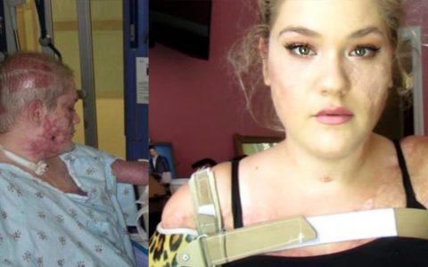 Kaitlyn Dobrow - inspiring quadruple amputee beauty blogger